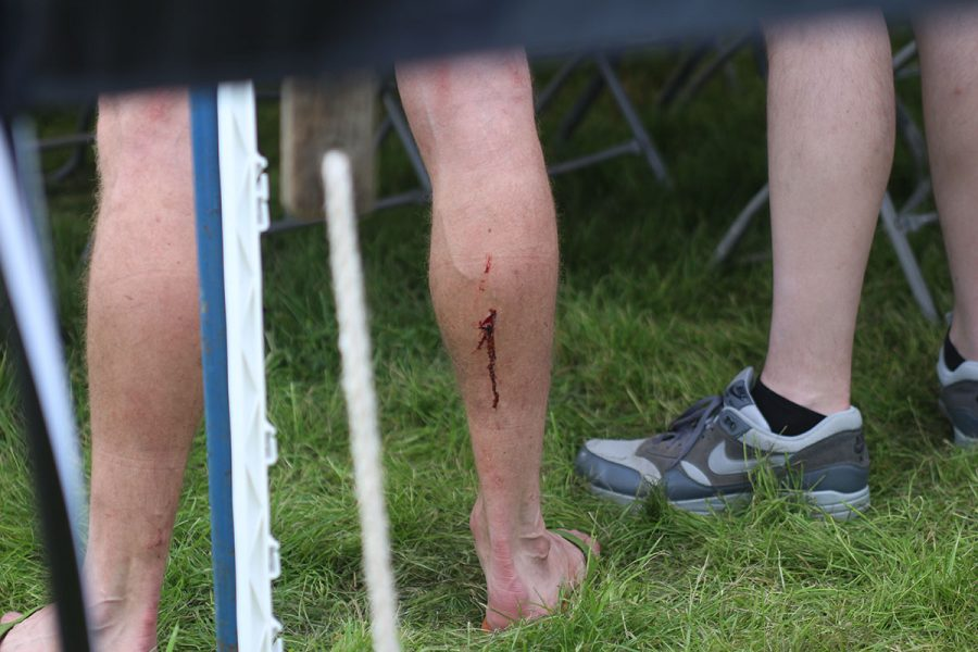 ard rock enduro race blood injury