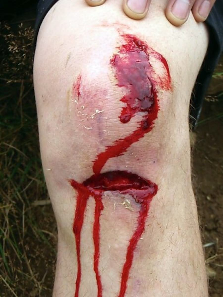 bloody knee injury ouch cut
